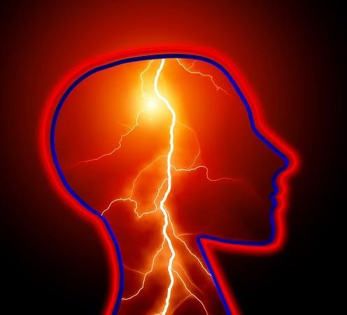 אדם שיש לו אפילפסיה